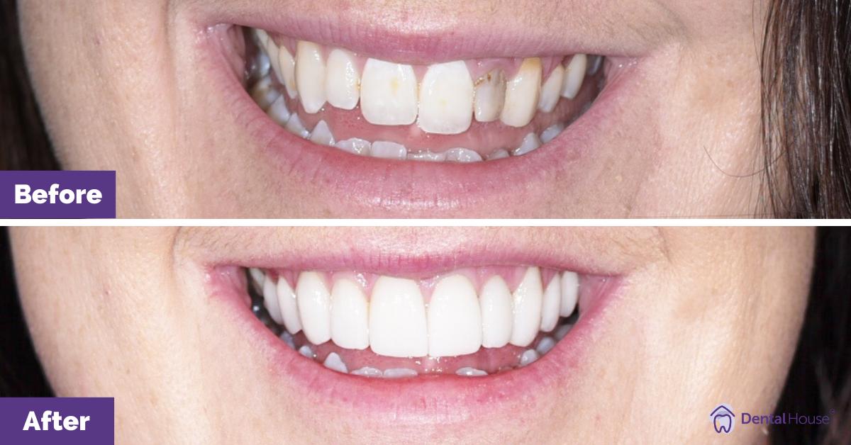 Porcelain-veneers_Melbourne_Dental-House_2