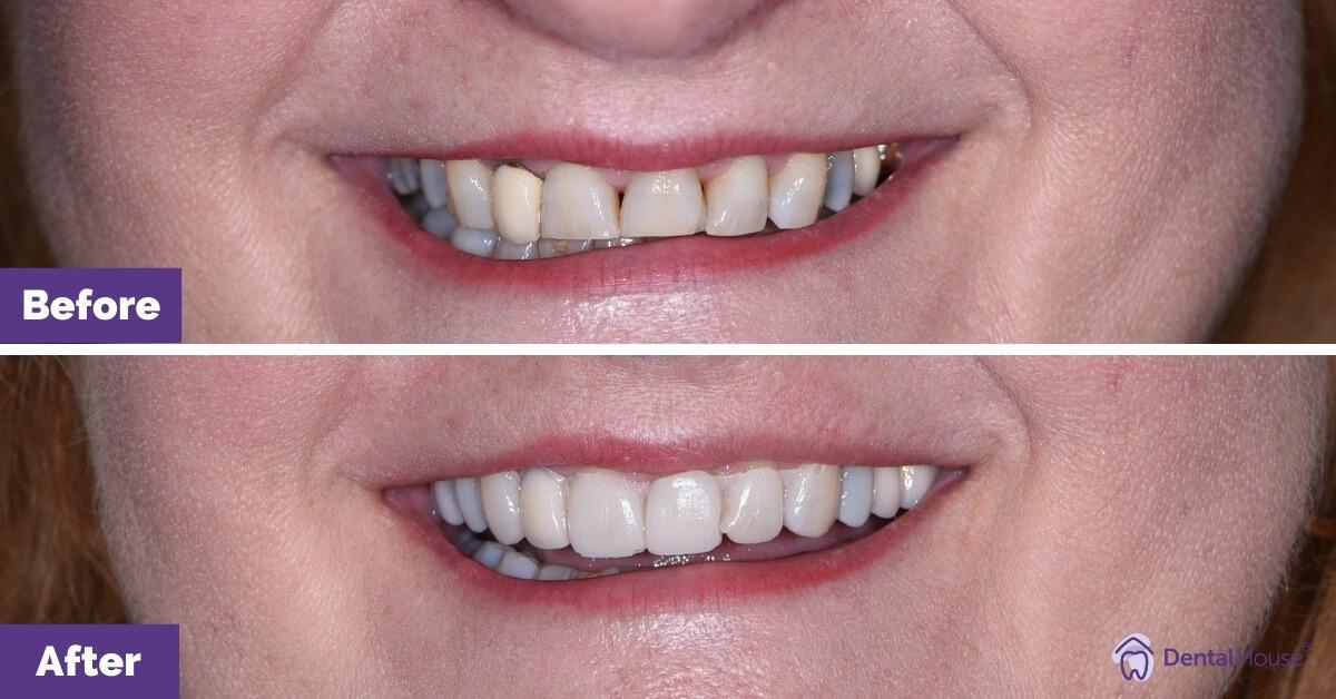 Dental-House-Group-_Sharon-B-Smile-Makeover-Journey