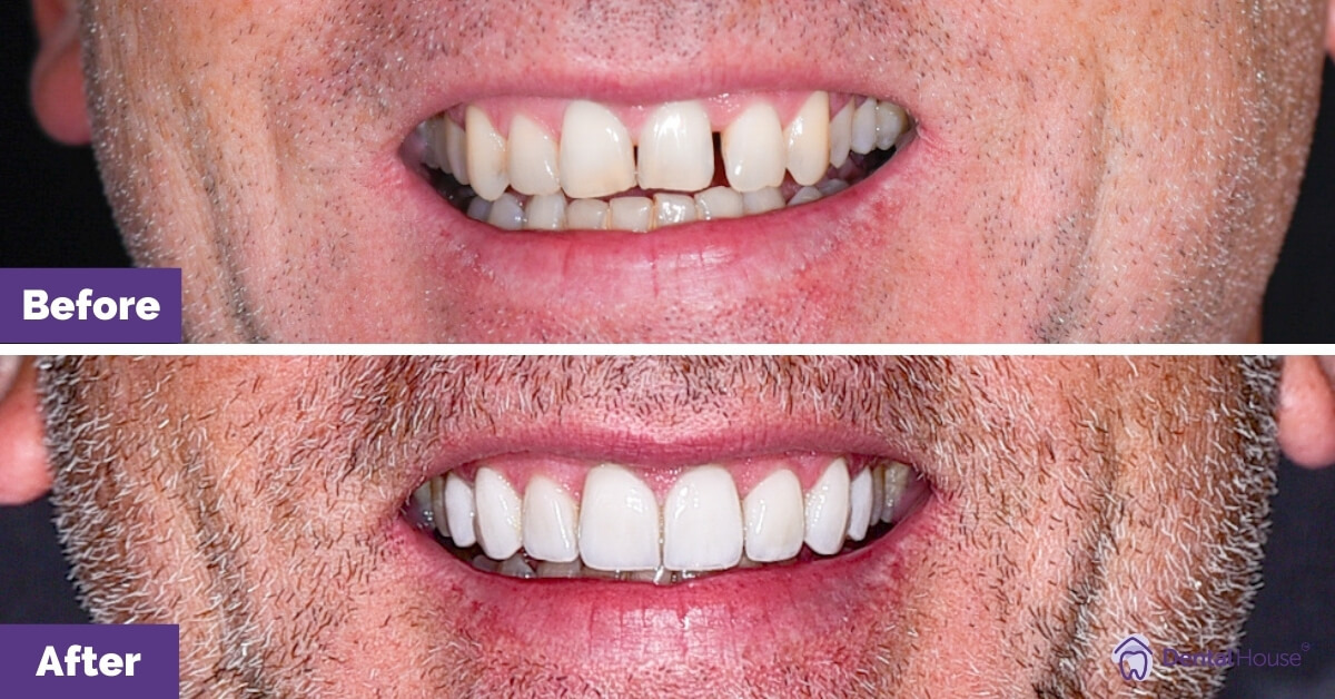Dental-House-Group-_Paul-Smile-Makeover-Journey