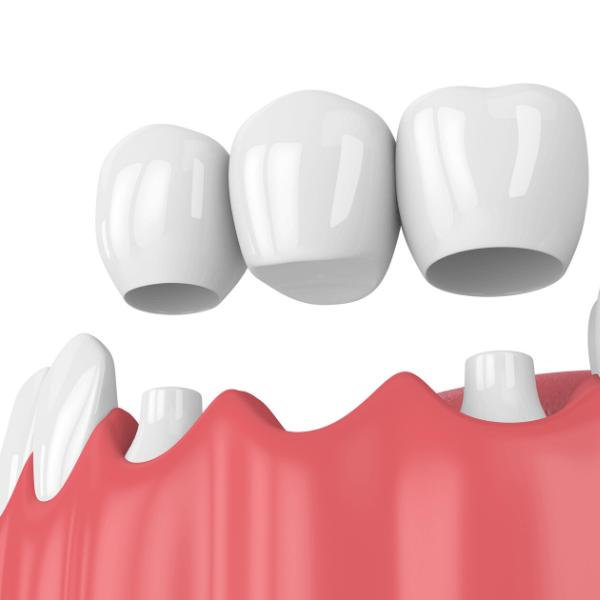 Dental Crown & Dental Bridges Melbourne