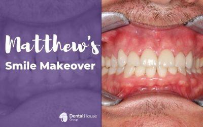 Matthew's Smile Makeover in Bacchus Marsh