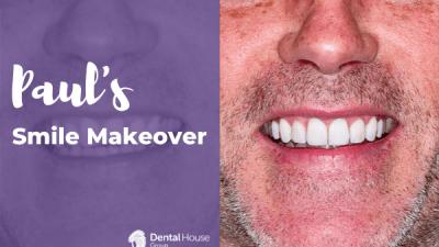 Paul's Smile Makeover Journey in Bacchus Marsh