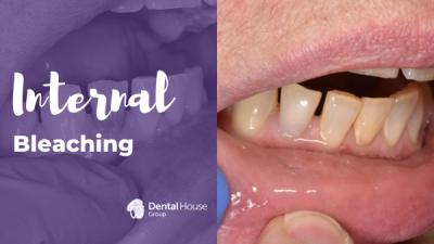 Internal Bleaching in Dental House Group