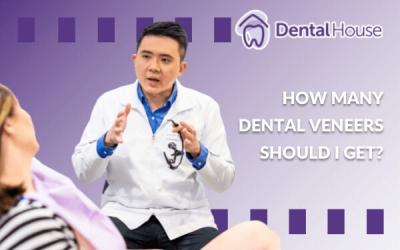 How Many Dental Veneers Should I Get?