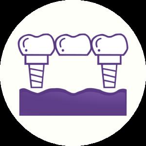 Implant Bridge Dental House New Gisborne